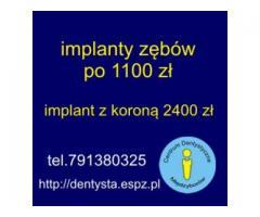 Implanty zębów  1100 zł